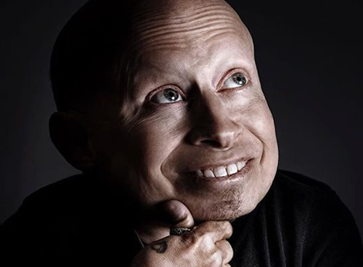 Verne Troyer aka Mini Me dies at 49 after struggling with alcoholism and depression for years