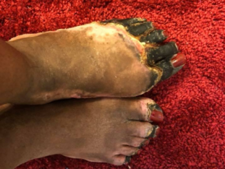 Birth control complications causes lady to lose her uterus and leaves her with decayed hand and feet (graphic photos)
