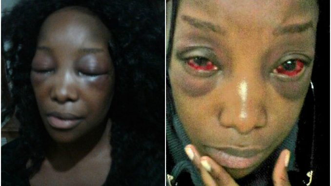 Photos: Lady badly beaten by a Taxify driver in South Africa